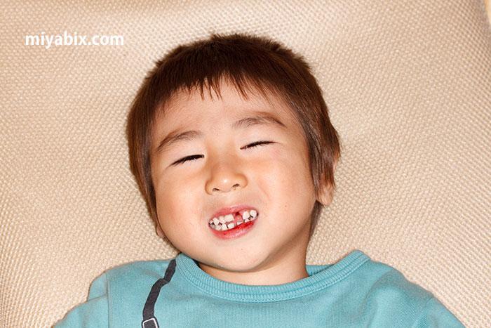 乳歯,刺歯,ケガ,転倒,子供,幼児,歯医者