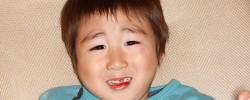 顔から転んで前歯(乳歯)を失った人が、歯医者さんで口を開けない話