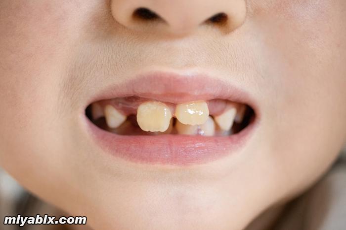 前歯,子供